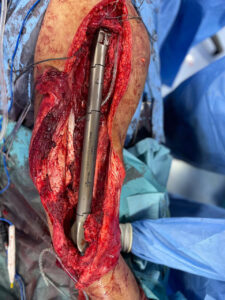 total-femur-resection